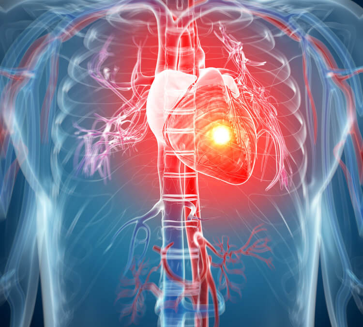 Angina Treated With Stem Cells In Small Study