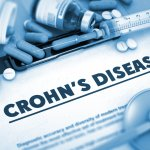 UK Stem cell therapy for crohn's