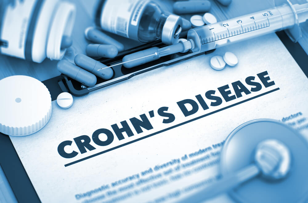 UK based clinical trial to treat Crohn's with stem cells