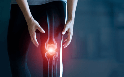 Study reveals placenta injection may help to alleviate the painful symptoms of arthritis