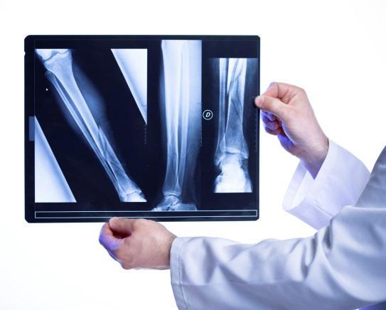 mes_osteoporosis_cells4life_radiografia_huesos_osteoporosis