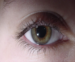 stem-cell-eye-treatment.jpg